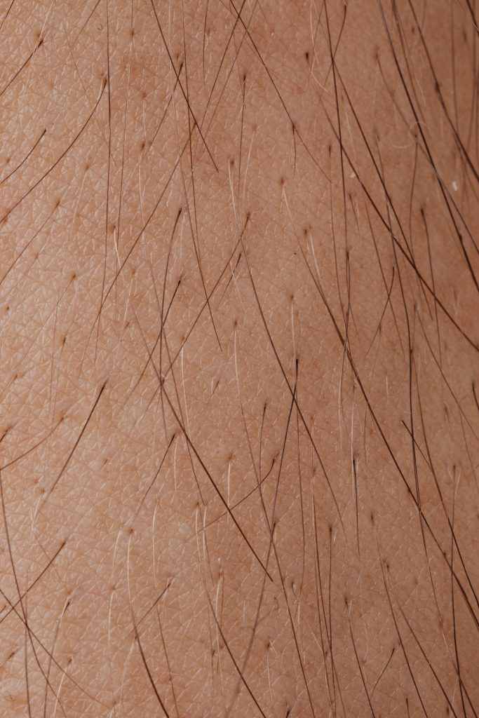 close up of skin and hair follicles relating to does hard water cause hair loss