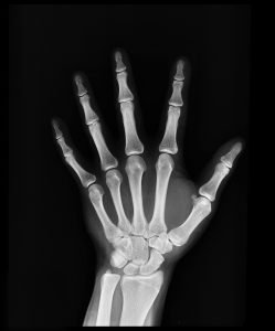 x-ray of a hand showing healthy bones from drinking calcium in hard water